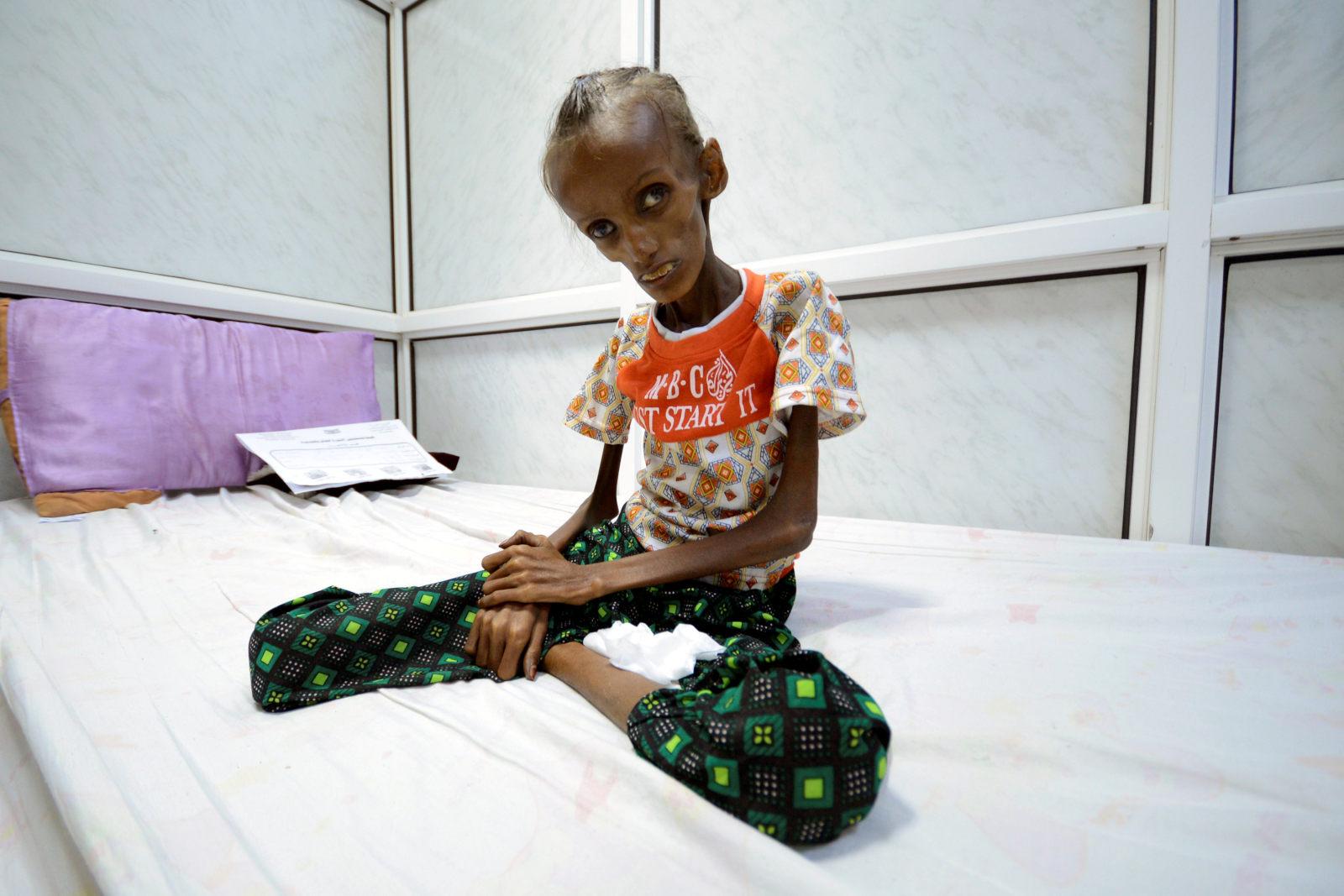 Jutaan Warga Yaman Hadapi Krisis Pangan Saat Ramadan