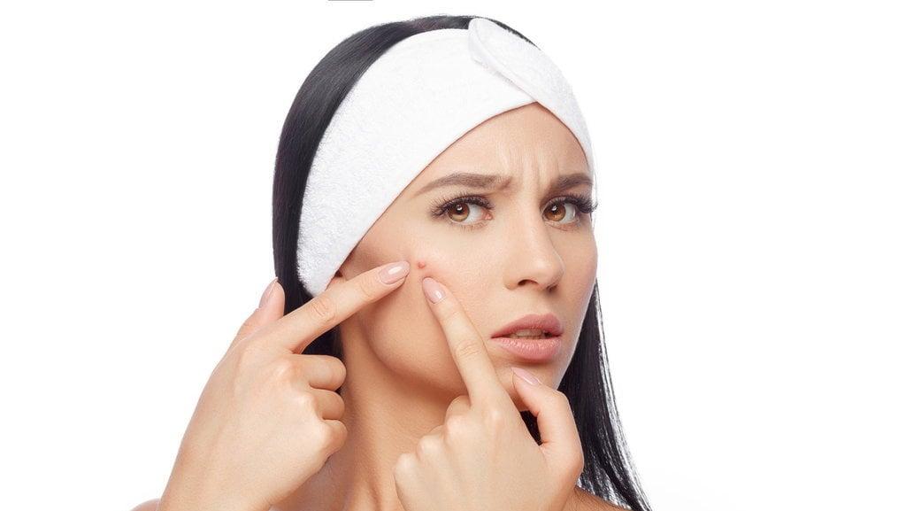 Mengenal Jerawat Batu Jenis Pengobatan Dan Pencegahannya Tirto Id