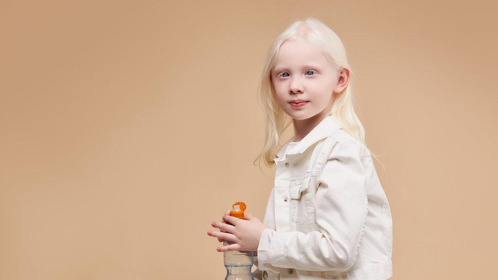 43+ Apa yang dimaksud dengan penyakit albino ideas