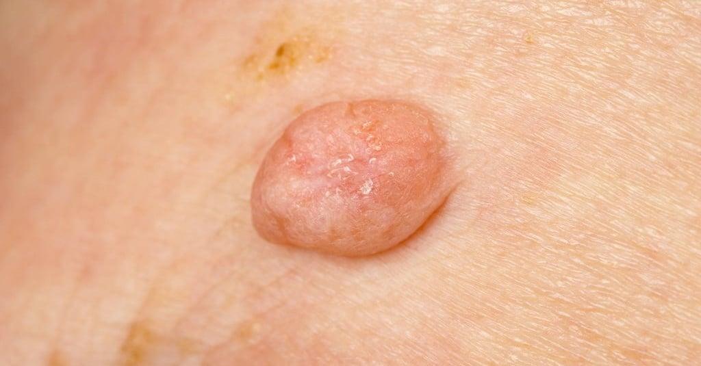 papiloma atau kutil hpv cancer in tongue