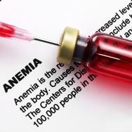 Minum Teh dan Kopi bisa Memicu Anemia