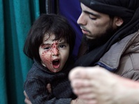 Rumah Sakit Suriah Diserang, 10 Tewas Puluhan Luka-luka