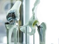 Pemerintah Kembangkan Tulang Implan di Dalam Negeri