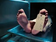 Penyebab Kematian Karena Alzheimer Naik 55 Persen di AS