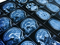 Kebiasaan yang Membuat Kemampuan Otak Menurun