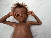 Blokade Saudi Memperparah Bencana Kelaparan di Yaman