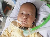 Adam Fabumi, Bayi Penderita Dandy-Walker Syndrome Meninggal