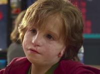 Sindrom Treacher Collins: Kelainan Wajah dan Pesan Anti-bullying
