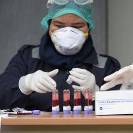 17.534 Warga DKI Ikut Rapid Test Corona, 282 Orang Positif