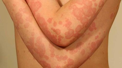 Pasien Kanker Berisiko Lebih Tinggi Terkena Penyakit Herpes Zoster Tirto Id