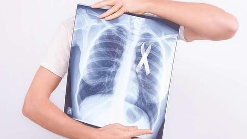 Kanker Makin Kerap Perlukah Indonesia Bikin Peta Kanker Ala