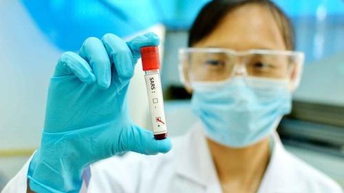 28++ Virus corona dari hewan apa aja terbaru