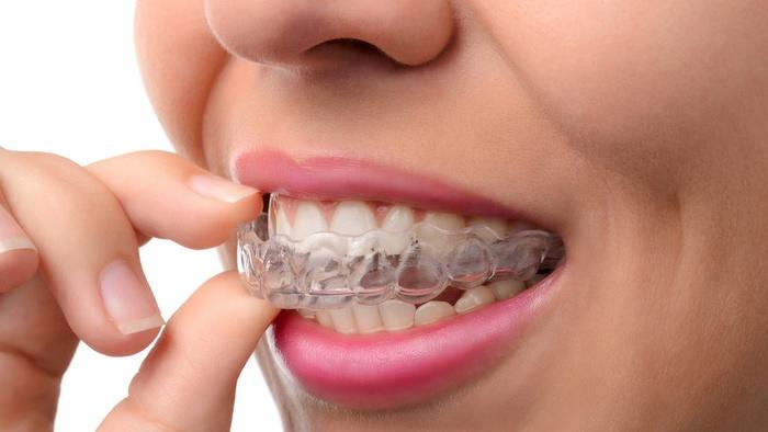 Ilustrasi retainer gigi. Getty Images/iStockphoto