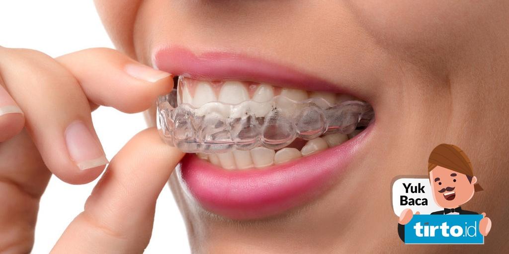Jangan Sembarangan Memakai Perapi Dan Pemutih Gigi Instan Tirto Id